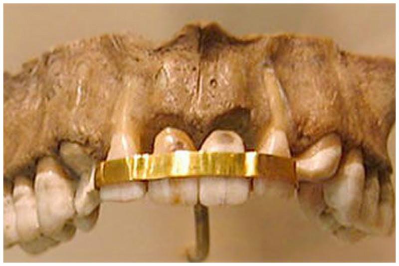 Древние египтяне заменяли зубы донорскими, используя золотую проволоку, чтобы прикрепить зубы донора к собственным зубам интересное, прошлое, стоматологи, ужас, факты