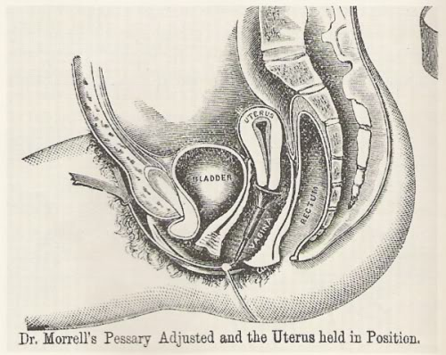 vaginalnaya-mioma-meshaet-polovoy-zhizni