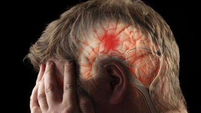 8 предупреждающих признаков инсульта, которые вы никогда не должны игнорировать