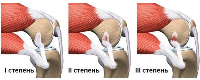 Травмы коленного сустава— народные методы лечения