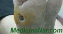 Грибковые поражения кожи. Рецепты лечения