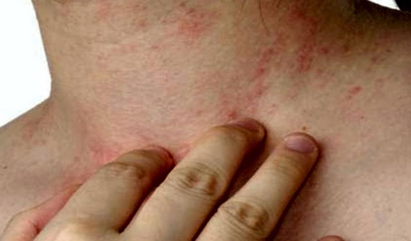 Вирус Зика: болезнь, угрожающая всему человечеству