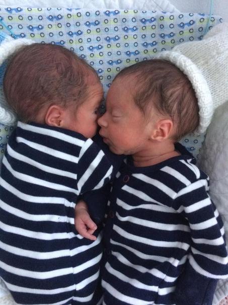 Родители думали, что неродившиеся близнецы машут им с экрана...