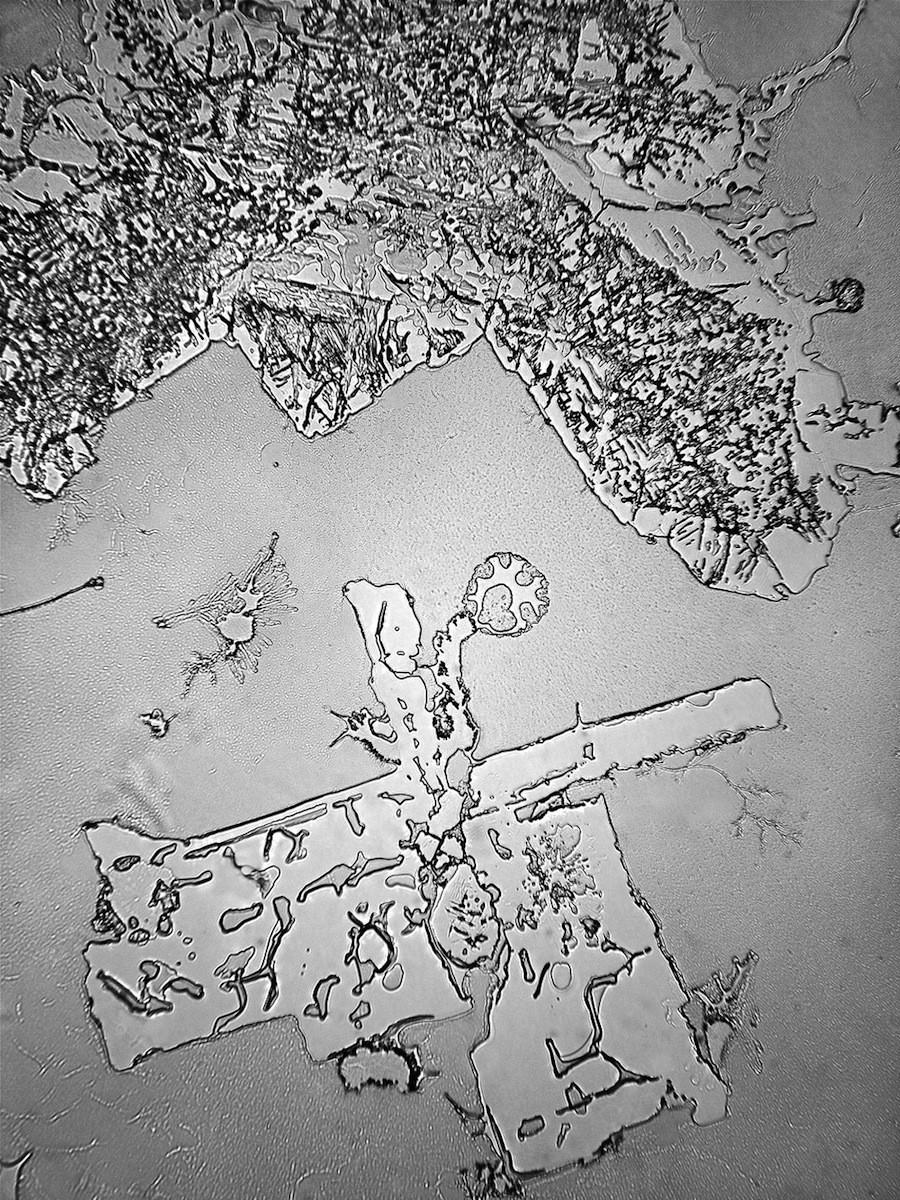 Слезы облегчения исследование, микроскоп, слеза