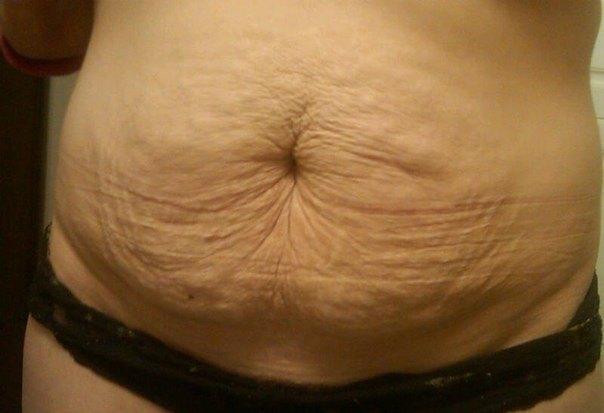 термобелье оптом, кожа тело после родов потемнело ТермобельеДРУГИЕ СТАТЬИ