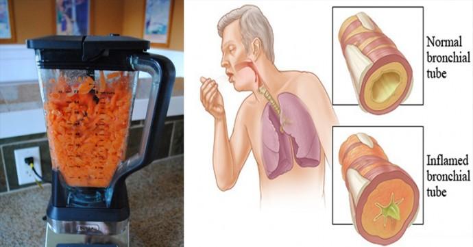 Морковь: избавит от кашля и выведет мокроту из легких