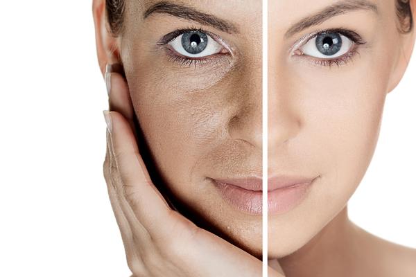 Идеальная здоровая кожа без морщин, пигментных пятен и высыпаний всего за 3 дня