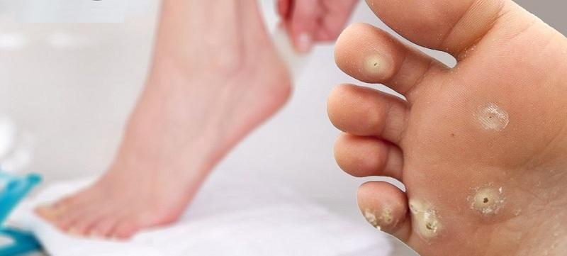 Шипига на ноге лечить в домашних условиях