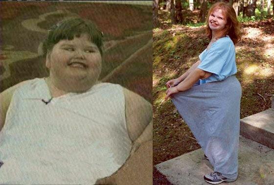 Девочка весила в 7 лет 220 кг, а сейчас за ней ухлестывают красавцы