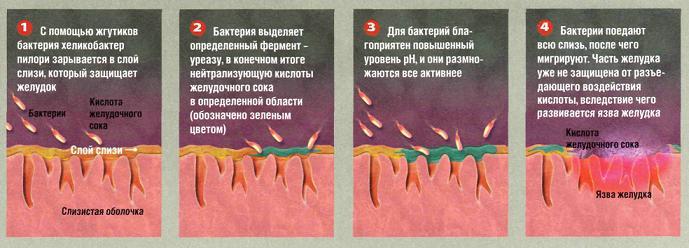 Болезни связанные с хеликобактер