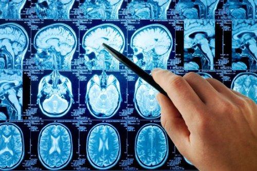 Как спастись при инсульте: советы врача