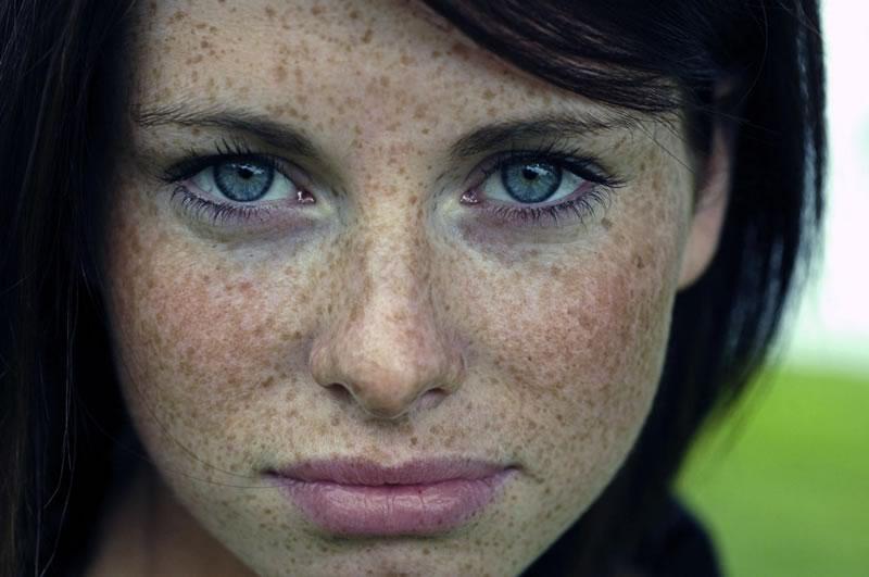 Пигментные пятна на лице как избавиться от солнца в