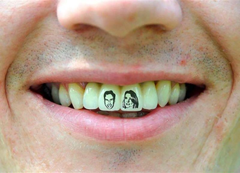 тату на зубах