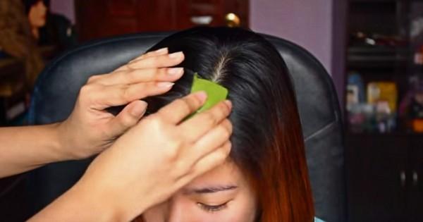 Сначала ей нанесли на волосы сок алоэ, а потом эту маску. Результат — перхоти как не бывало!