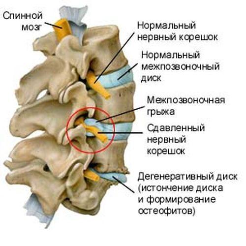 Межпозвоночная грыжа шейного отдела позвоночника лечение