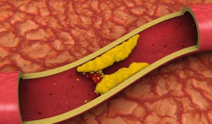 снижение холестерина домашними средствами