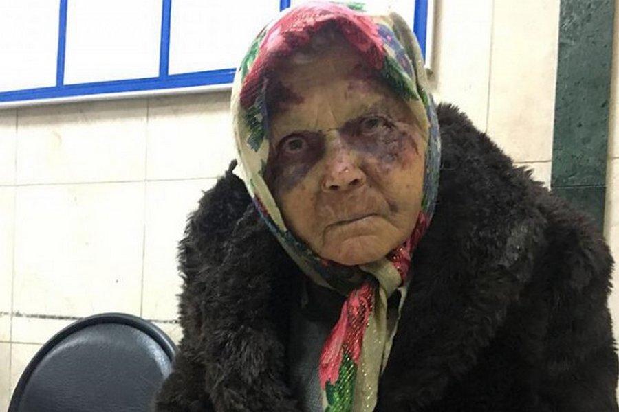Люди как звери уже… Избитую до полусмерти старушку все принимали за бомжа