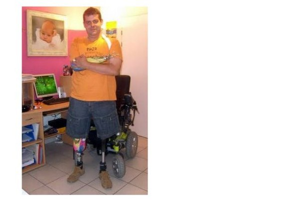 Инвалид по собственному желанию