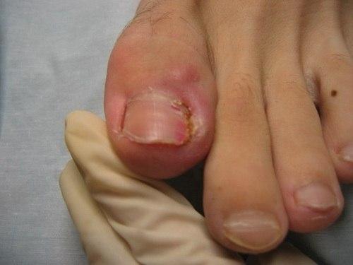 Грибок межпальцевой ног симптомы