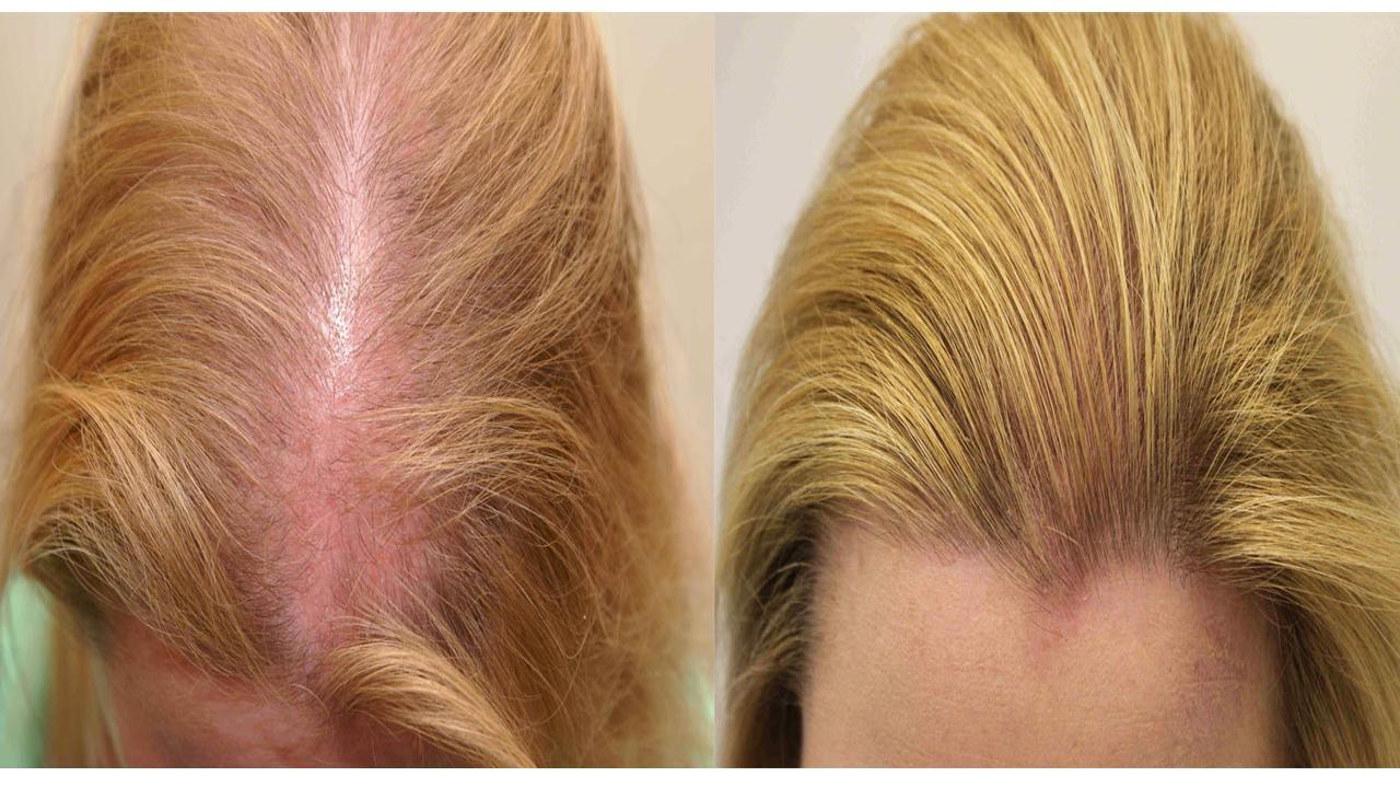 Останови выпадение волос и о…