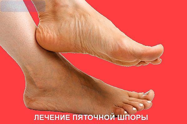 Как народными средствами лечить шпоры на ногах в домашних условиях