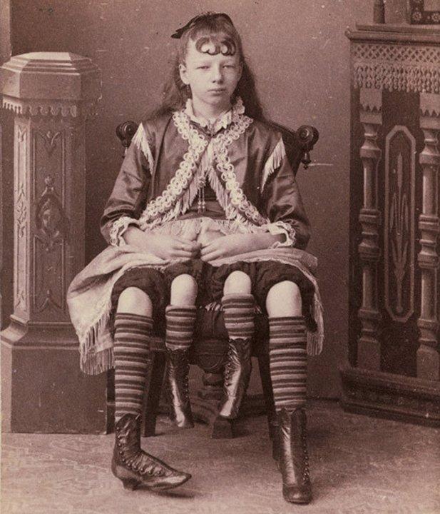 Четвероногая женщина. «Цирк уродов»: Страшное зрелище (фото)