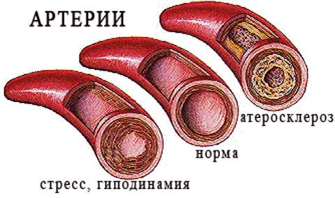 паразиты в печени человека лечение