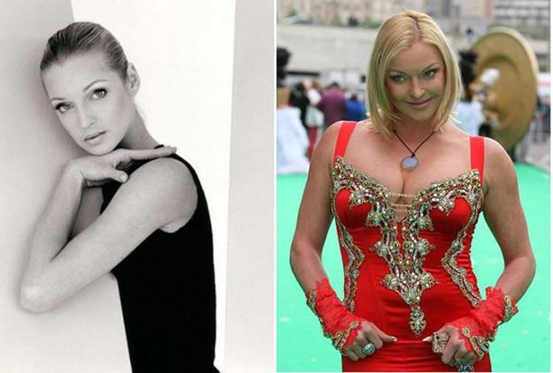Знаменитые женщины, которые разрушили свою былую красоту непомерной страстью к пластике