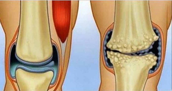 Природные противовоспалительные средства, которые творят чудеса для суставов и боли в коленях