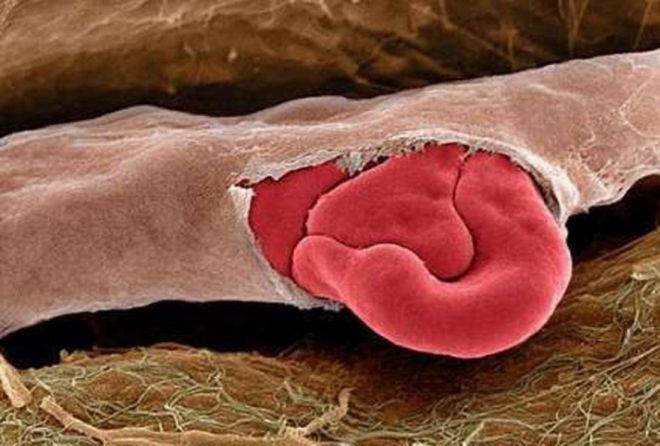 красные кровяные тельца выходят из лопнувшего капилляра