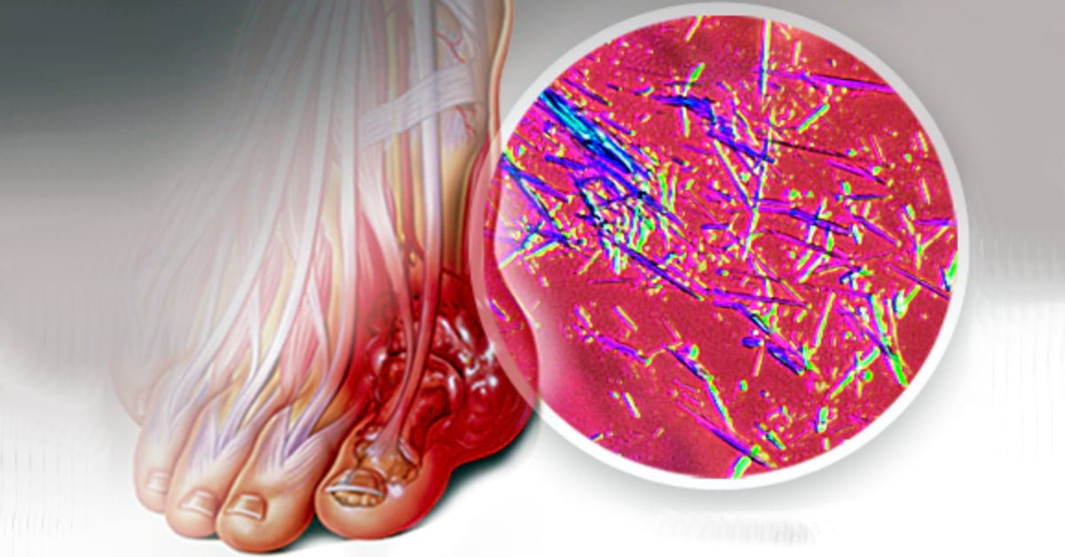 Вот как быстро вывести кристаллы мочевой кислоты из суставов и организма, а также остановить развитие подагры