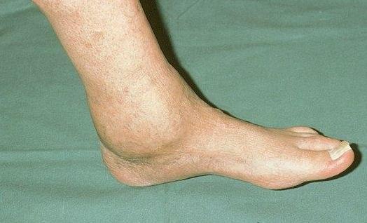 Артроз голеностопного сустава: симптомы, степени и лечение Артрит голеностопного сустава