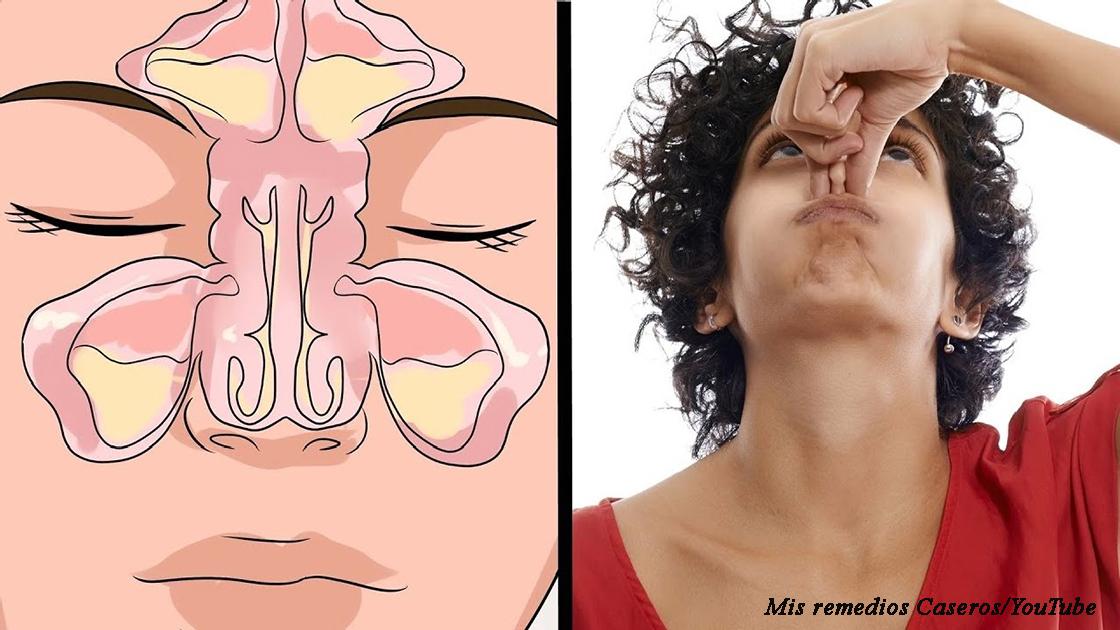 Вот как быстро и без лекарств избавиться от насморка и даже синусита