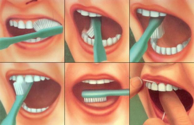 Что будет, если не чистить зубы? интересное, медицина