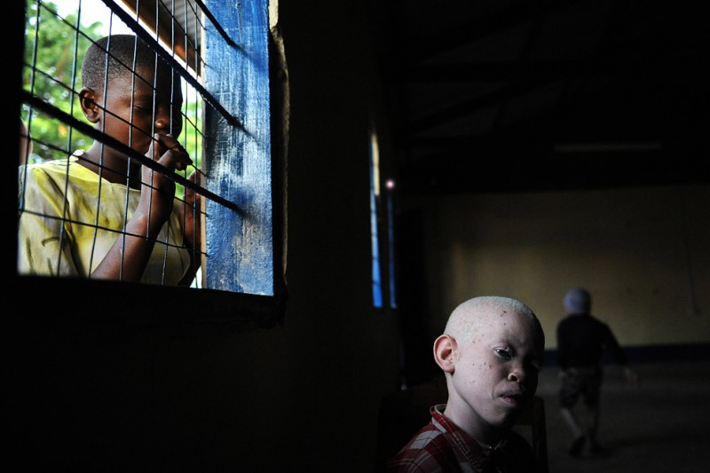 3) Девятилетний Амани сидит в рекреации начальной школы для слепых в Митидо 25 января 2009. Он поступил сюда после, убийства его сестры, пятилетней Мариам Эммануэль, девочки-альбиноски, которая была убита и расчленена в феврале 2008 года. (TONY KARUMBA/AFP/Getty Images)