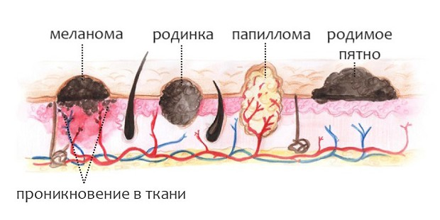 Папилломы на шейке матки причины фото