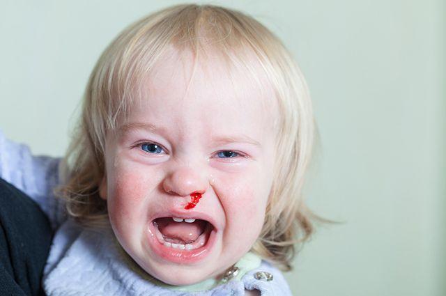 Почему у ребенка без причины бежит кровь из носа