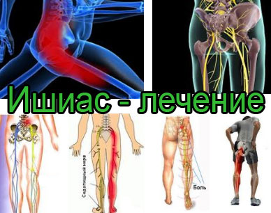 Как лечить седалищный нерв народными средствами