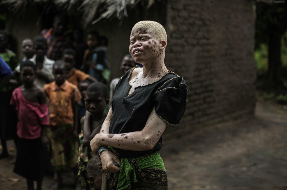 альбиносы - преследуемые белые-1