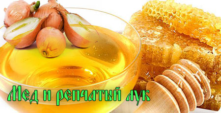 Мед и репчатый лук от звона в голове