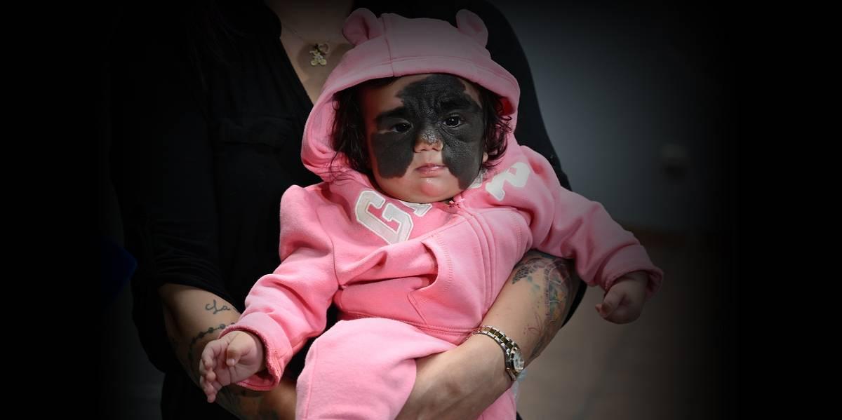 Российские врачи успешно начали лечение маленькой американки с огромным пятном на лице