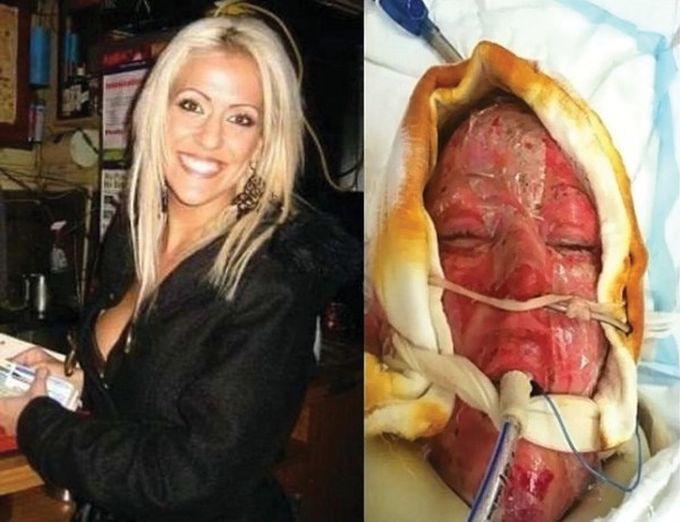 Жизнь без лица закончена: австралийка сняла маску, которую носила 2,5 года (18 фото)