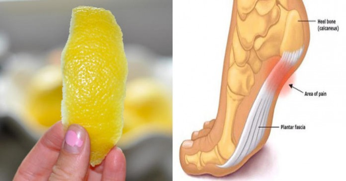 Хитрость лимонной кожуры против воспаления и боли