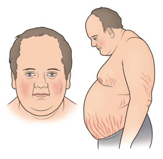 стрии на теле