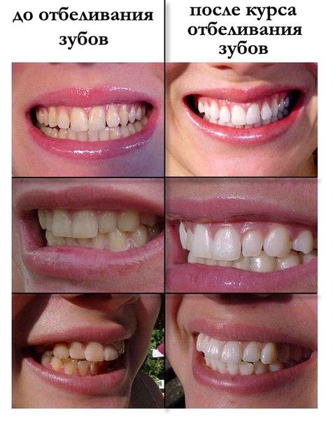 Отбеливание зубов в домашних условиях фото до и после