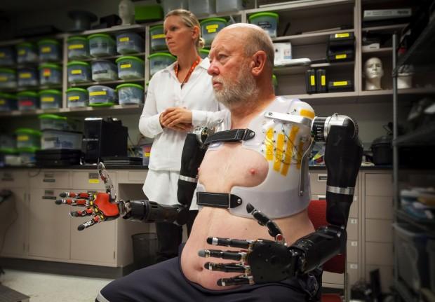 Первый человек с руками–манипуляторами, управляемыми сознанием