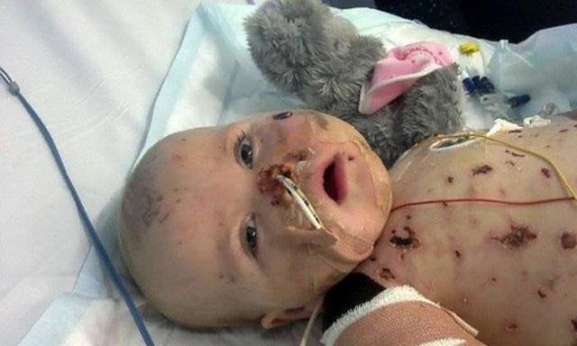 Эта девочка разлагалась заживо, но ее вовремя успели спасти...