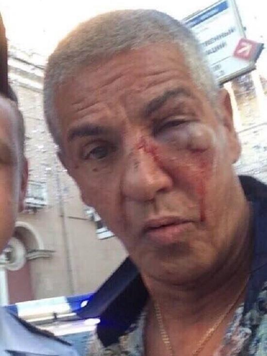 Сами Насери прооперирован: судя по показаниям очевидцев, спасибо, что никого не порезал