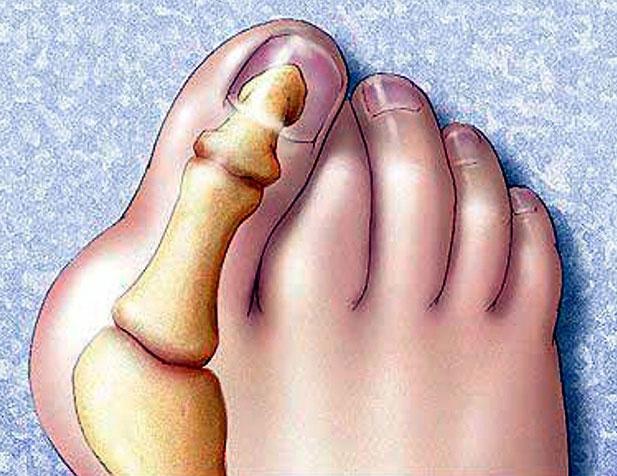 Косточка на ноге со стороны мизинца как лечить