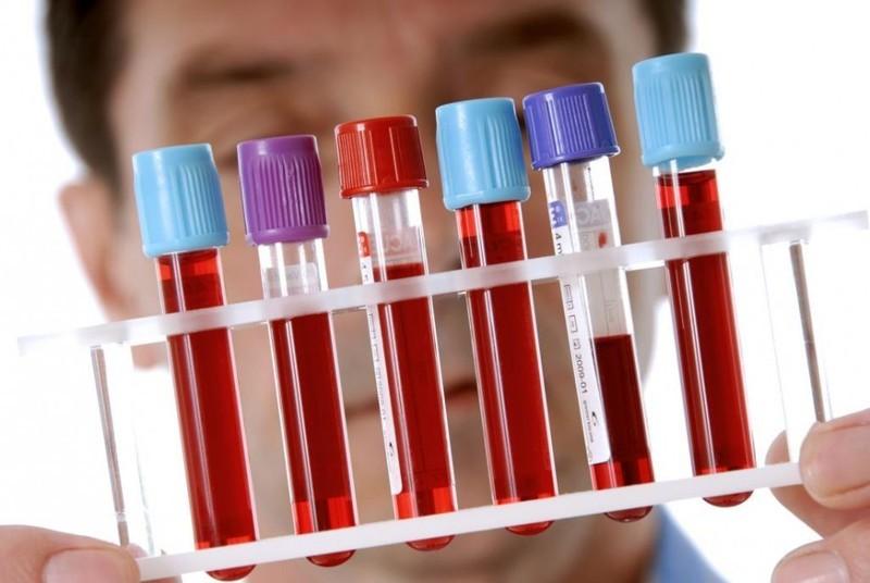 Общий анализ крови — это полезно знать!